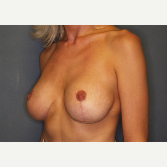 35-44 year old woman treated with Breast Lift with Implants after 3027956