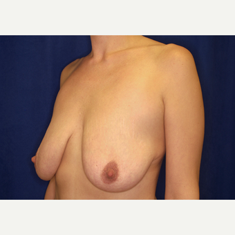 35-44 year old woman treated with Breast Lift with Implants before 3027956