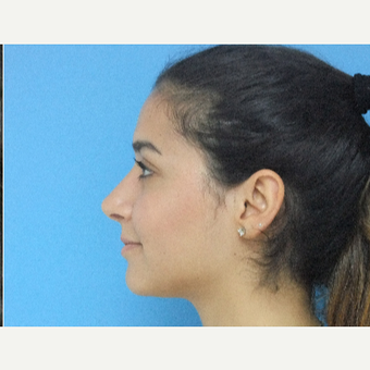 18-24 year old woman treated with Rhinoplasty after 3826213