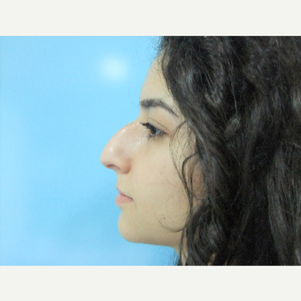 18-24 year old woman treated with Rhinoplasty before 3826213