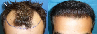 35-44 year old man treated with Hair Transplant before 3745467