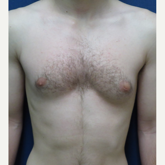 18-24 year old man treated with Male Breast Reduction before 3123051