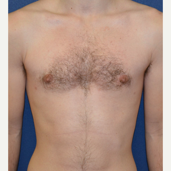 18-24 year old man treated with Male Breast Reduction after 3123051