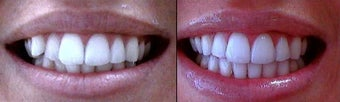 Invisalign before 109368