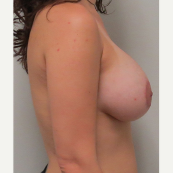 Mentor Breast Implants for this 28 Year Old Woman after 3030450