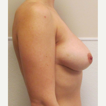 Mentor Breast Implants for this 28 Year Old Woman before 3030450