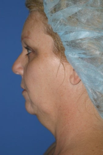 55-64 year old woman treated with Chin Liposuction before 1685175
