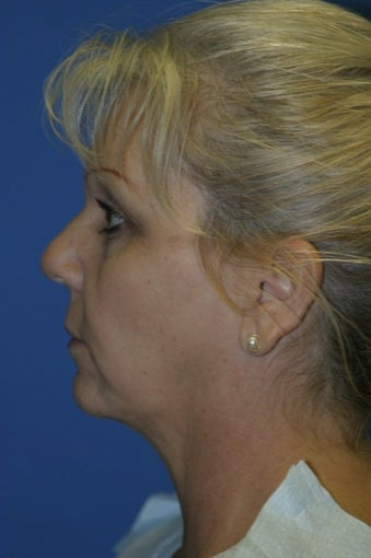 55-64 year old woman treated with Chin Liposuction after 1685175