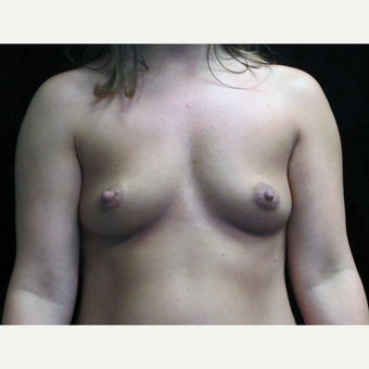 25-34 year old woman treated with Breast Augmentation before 3424971