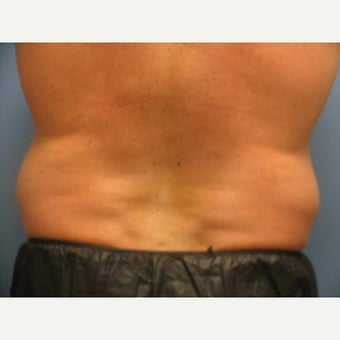 Coolsculpting before 1805592