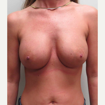 Mentor Breast Implants for this 38 Year Old Woman before 3006138