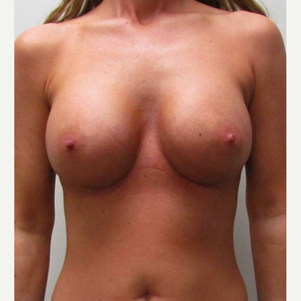 Mentor Breast Implants for this 38 Year Old Woman after 3006138