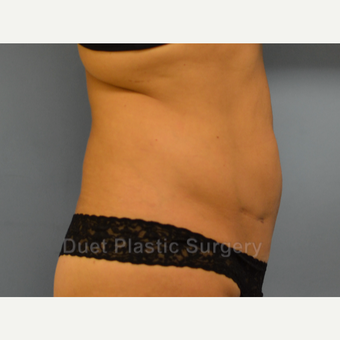 45-54 year old woman treated with Liposuction before 3367940