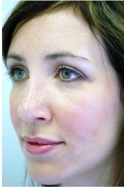 25-34 year old woman treated with Rhinoplasty after 3259405