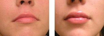 Lip Fillers - Injectable Fillers after 3093676