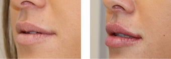 Lip Fillers - Injectable Fillers before 3093676