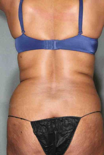 49 Year Old Female Liposuction for excess fat lower mid-section