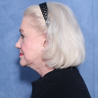 65-74 year old woman treated with Neck Lift (view 2 of 2) before 3175477