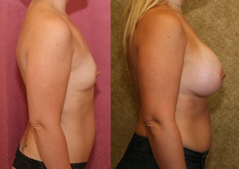 Breast Augmentation with 400 cc Mentor Saline Implants 453337