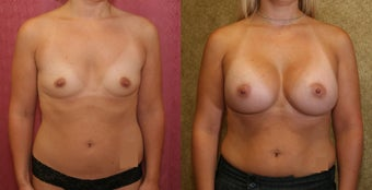 Breast Augmentation with 400 cc Mentor Saline Implants before 453337