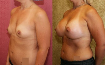 Breast Augmentation with 400 cc Mentor Saline Implants after 453337