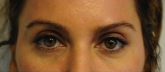 Upper Lid Blepharoplasty  after 320021