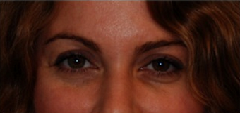 Upper Lid Blepharoplasty  before 320021