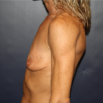 35-44 year old woman treated with Breast Augmentation before 3033302