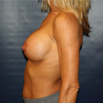 35-44 year old woman treated with Breast Augmentation after 3033302