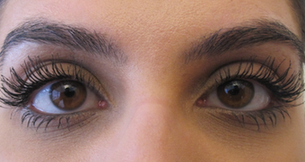 Latisse - Eyelash Growth after 1305551