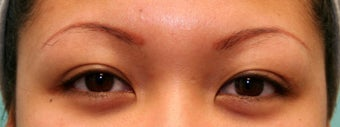 25-34 year old woman treated with Eyebrow Transplant before 1690453