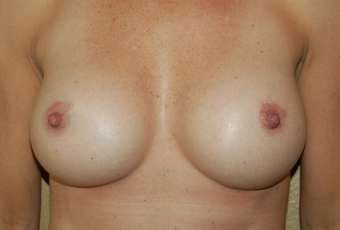 Breast Augmentation after 1639344