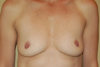 Breast Augmentation before 1639344