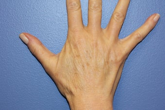 Hand rejuvenation with Juvederm after 1487253