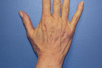 Hand rejuvenation with Juvederm before 1487253
