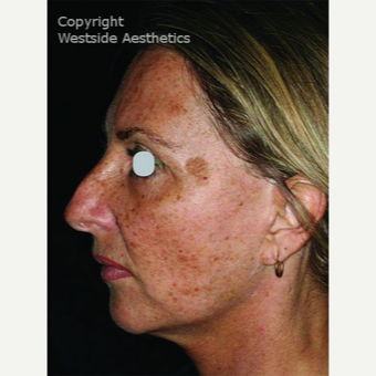 CO2 Laser for Sun Damage and Wrinkles before 3075708