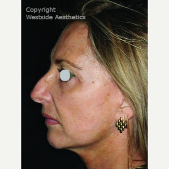 CO2 Laser for Sun Damage and Wrinkles after 3075708