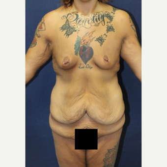 25-34 year old woman treated with Body Lift before 3658853