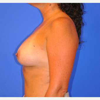 35-44 year old woman treated with Breast Implant Revision after 3482707