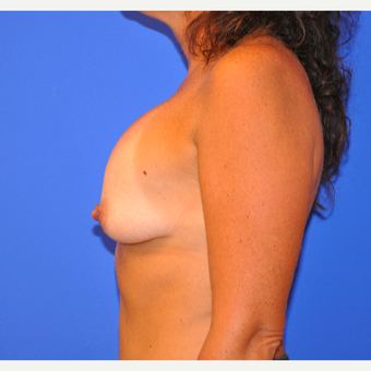 35-44 year old woman treated with Breast Implant Revision before 3482707