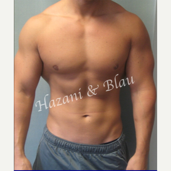 18-24 year old man treated with Male Breast Reduction after 3332907