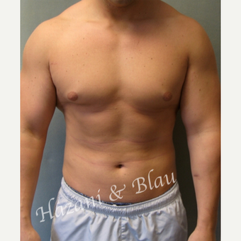 18-24 year old man treated with Male Breast Reduction before 3332907
