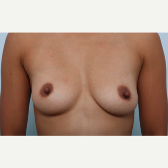 Breast Augmentation before 3459776