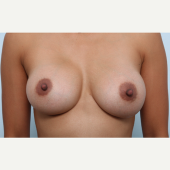 Breast Augmentation after 3459776