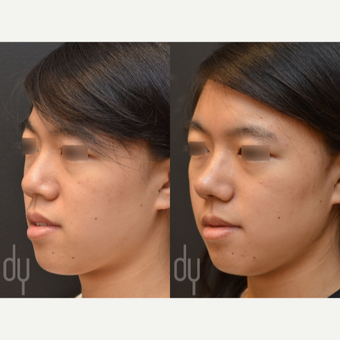 Asian Rhinoplasty with Rib cartilage before 3622585