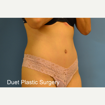 45-54 year old woman treated with Tummy Tuck after 3368734