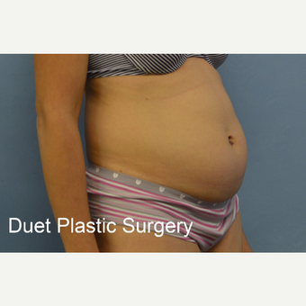 45-54 year old woman treated with Tummy Tuck before 3368734