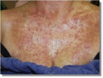 IPL for chest sun damage before 1261808