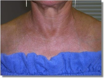 IPL for chest sun damage after 1261808