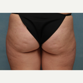 25-34 year old woman treated with CoolSculpting before 3224510